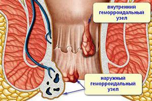 Внутренний и наружный геморроидальные узлы