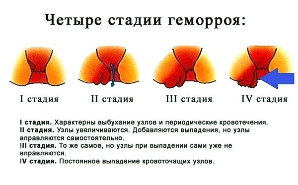 Четыре стадии развития геморроя