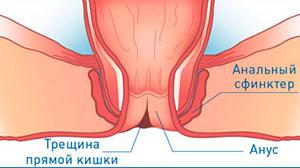 Боль широчайших мышц спины