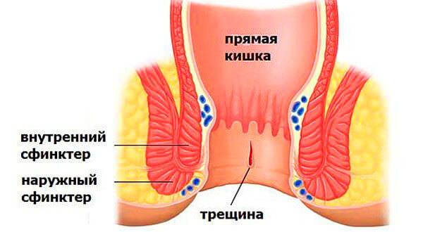 Трещина прямой кишки в начальной стадии