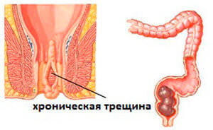 Хроническая трещина прямой кишки