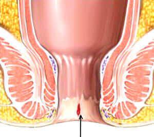 Трещина заднего прохода симптомы и лечение фото