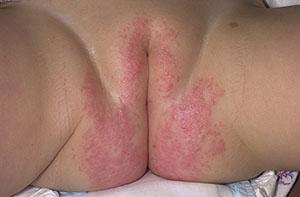 Аллергический дерматит у малышей