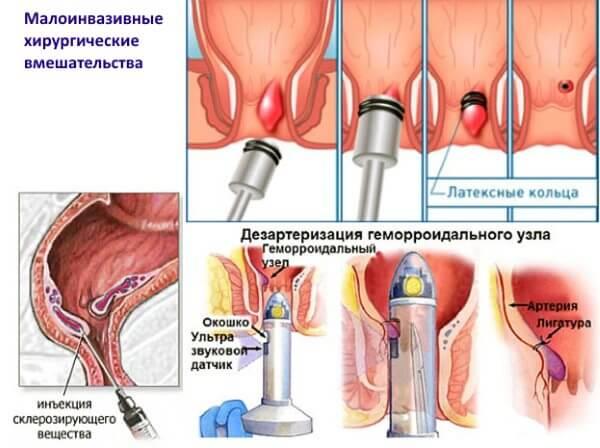 Малоинвазивные хирургические вмешательства