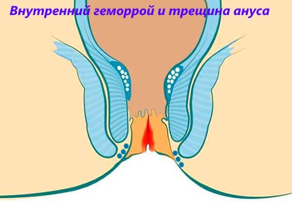 Внутренний геморрой и трещина ануса