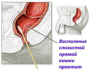 Воспаление слизистой прямой кишки