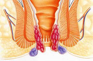Воспаление геморроидальных шишек в период обострения