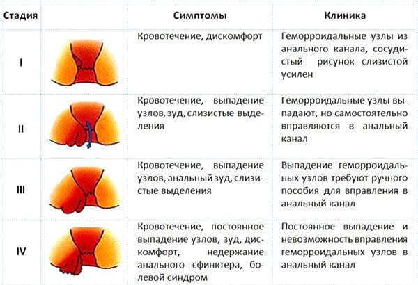 Стадии развития геморроя, симптомы, клиника