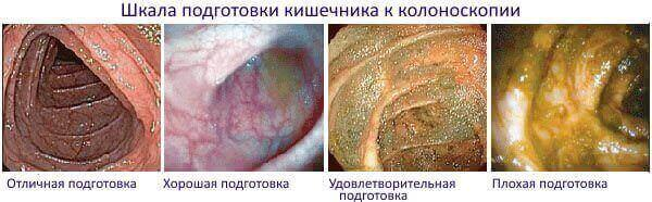 Шкала подготовки к колоноскопии