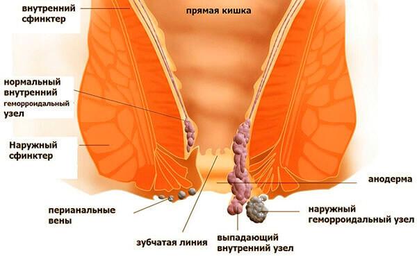 Внутренний геморрой на разных стадиях развития