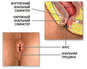 Анальная трещина - одна из причин кровотечения