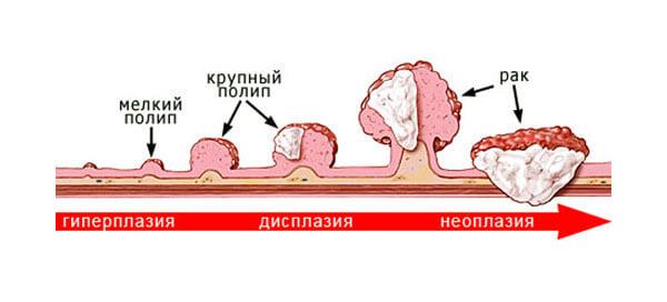 Полипы и новообразования в прямой кишке являются причиной кровотечния