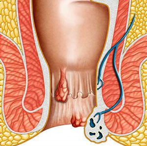 Шишка образуется при занесении инфекции в трещину в анальном проходе