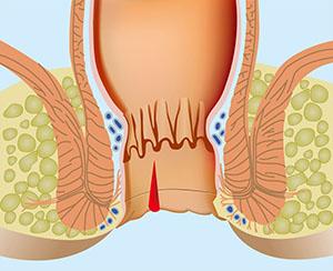 Трещина ануса