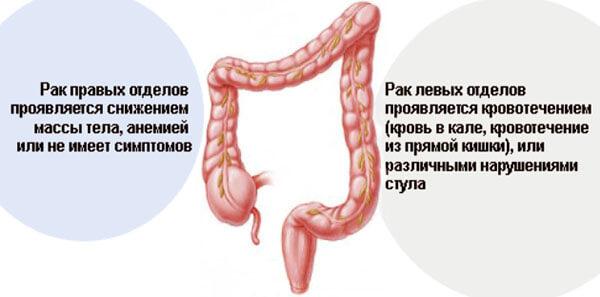 Симптоматика развития рака