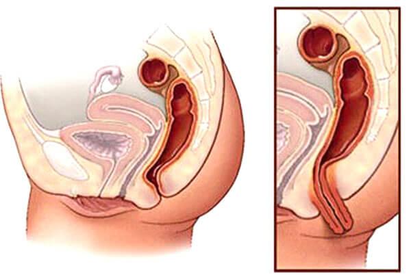 хирургическое удаление жира на животе