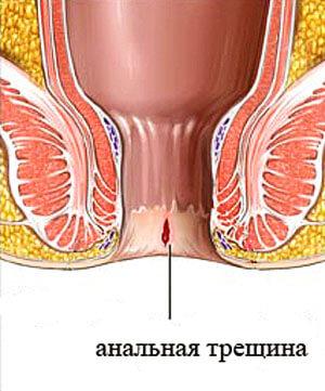Одна из причин появления слизи - анальная трещина