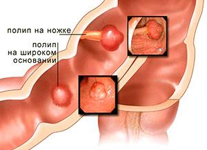 Полипы в прямой кишке - причина слизистого выделения из анального отверстия