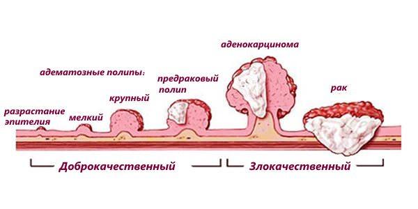 Развитие рака прямой кишки