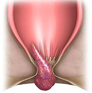 Геморроидальная шишка