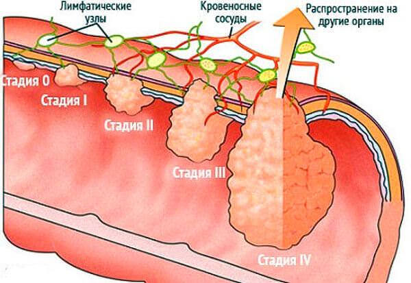 В прямой кишке развивается рак