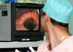 Диагностика свищей - ретроманоскопия