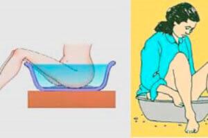 Лечение наружного геморроя лечебными ванночками
