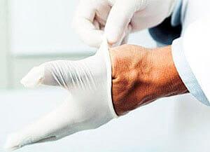 Используйте резиновые перчатки для вправления геморроида