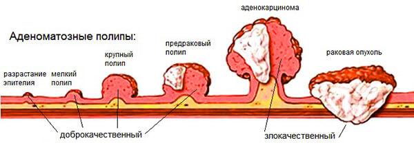 Рост полипов в прямой кишке