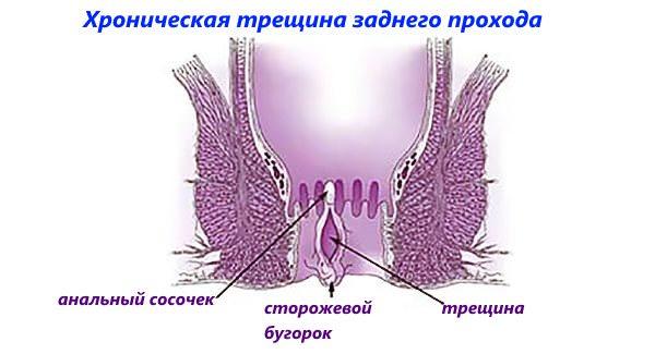 Трещины на заднем проходе лечение в домашних условиях 165