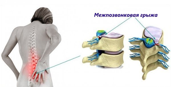 Межпозвонковая грыжа причиняет сильную боль