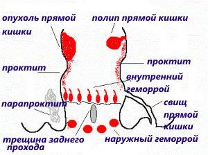 Болезни прямой кишки причиняющие сильную боль