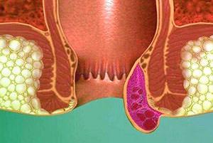 Образование геморроидального узла
