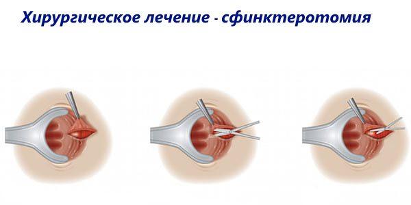 Хирургическое лечение - сфинктеротомия