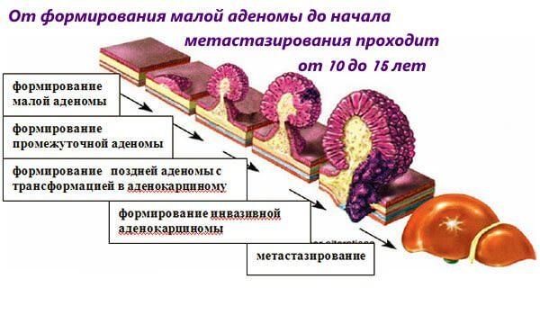 Развитие рака от малой аденомы до метастазирования