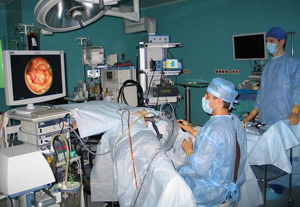 Проведение аноскопии прямой кишки