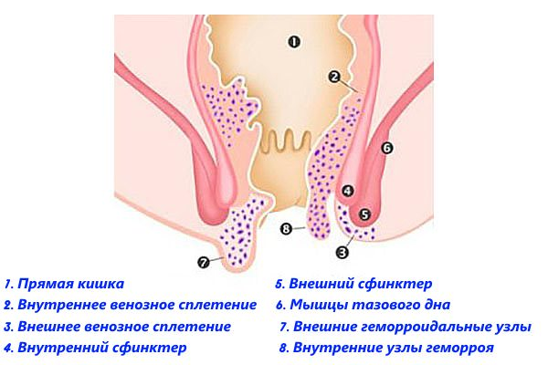 Внутренние и внешние геморроидальные узлы