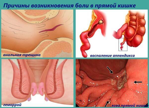 Причины возникновения боли в прямой кишке