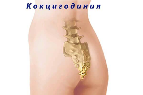 Кокцигодиния способна причинять боль в прямой кишке