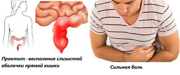 Сильная боль сигнализирует о проблемах в прямой кишке