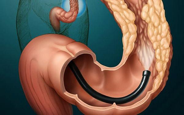 Ретроманоскопия кишечника