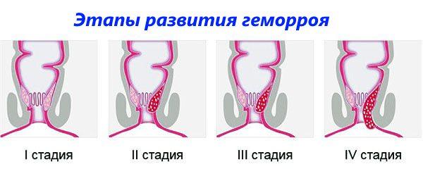 Наружный геморрой симптомы и лечение по стадиям  фото