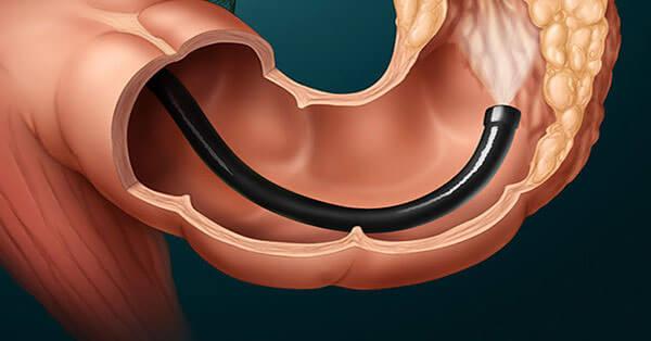 Колоноскопия позволяет своевременно обнаружить и начать лечение полипов