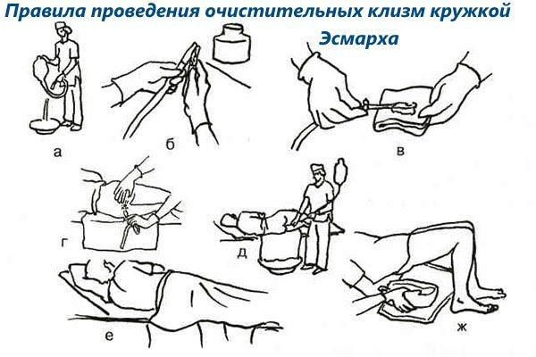 Правила проведения очистки кишечника клизмой