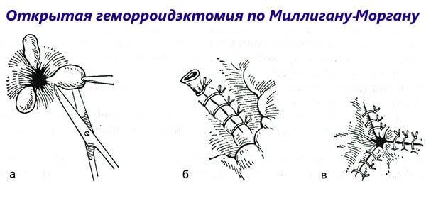 Открытая геморроидэктомия по Миллигану-Моргану