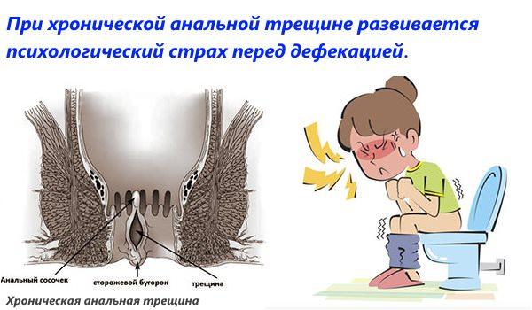 При хронической трещине больной ощущает страх перед дефекацией
