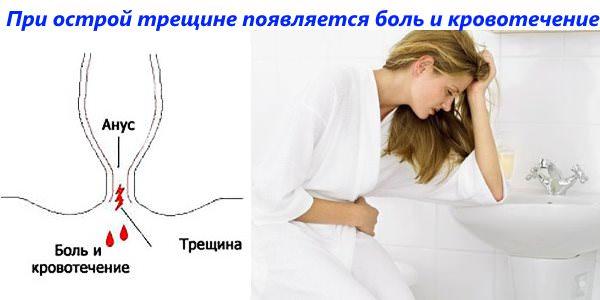 Резка боль и кровотечение характеризуют появление острой анальной трещины