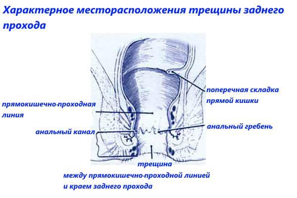 Характерное месторасположения трещины заднего прохода