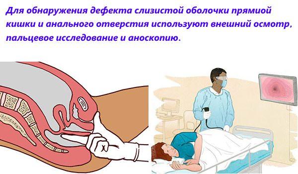 Проведение обследования анальной трещины