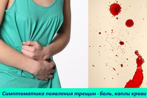 Сильные боли и капли крови при дефекации сигнализируют о появлении трещины в анусе